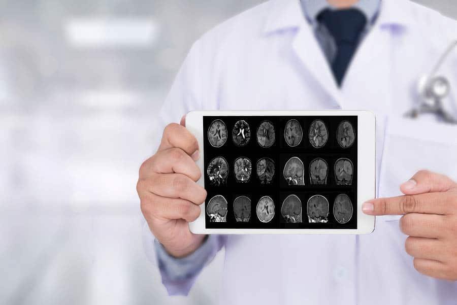 Lékař ukazující obrázky mozku, který postihla Alzheimerova choroba