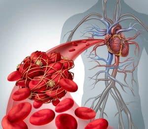 Antikoagulační účinek schematicke zobrazení cévy