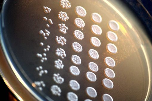 kvasinky Saccharomyces cerevisiae pod mikroskopem