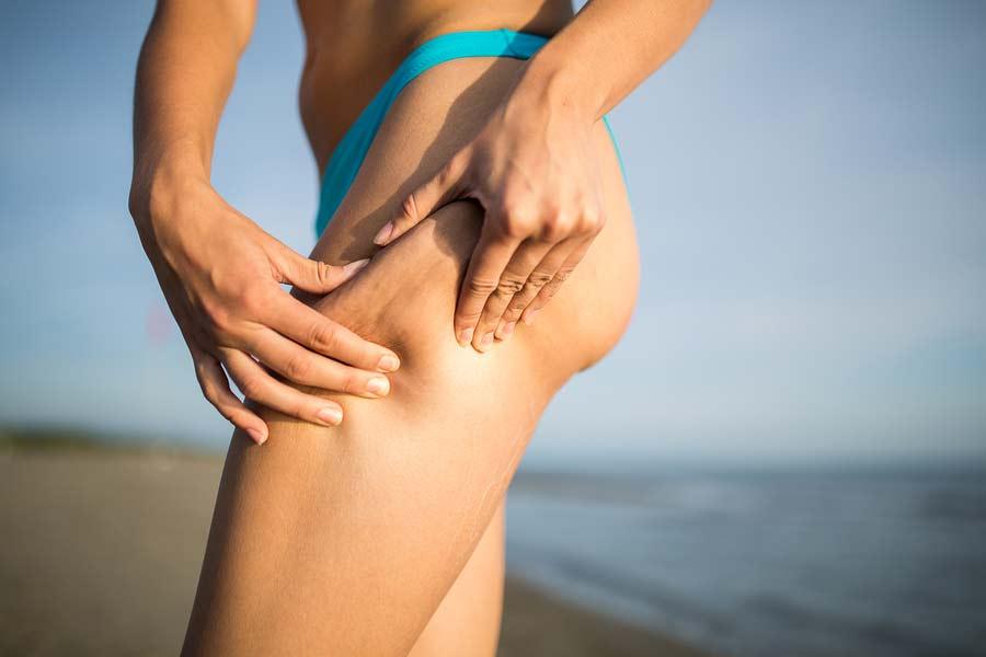 Celulitida na stehnech