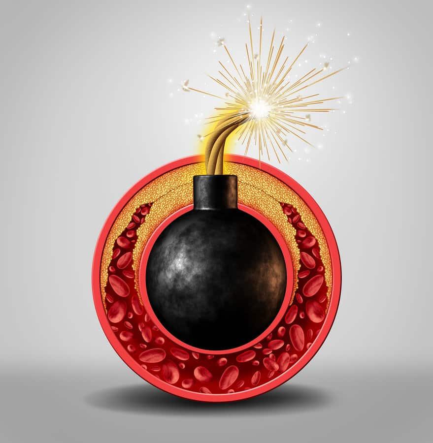 Cholesterol - vybuchující bomba