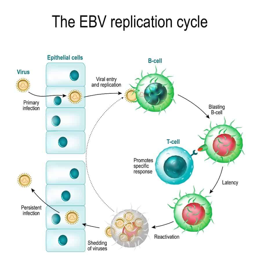 EB viróza