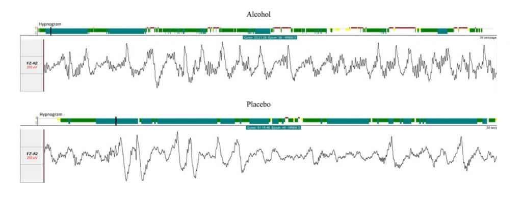 Záznam eeg mozku během spánku pod vlivem alkoholu a placeba