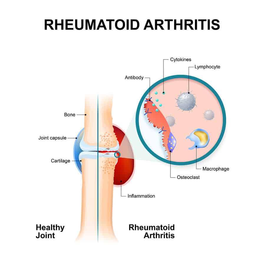 Revmatoidní artritida patří mezi autoimunitní onemocnění